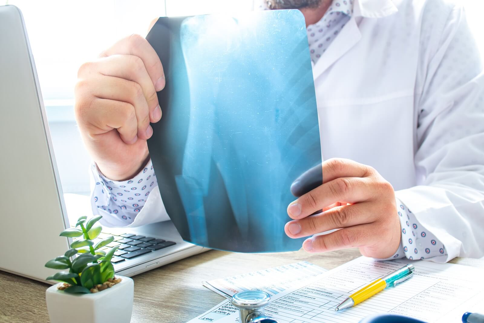 compensation and settlement for broken bones